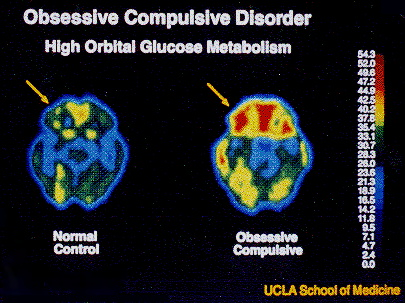 genetic and environmental influences on obsessive What causes obsessive-compulsive disorder experts still aren't clear on obsessive-compulsive disorder causes, but research suggests both genetic, physiological, and environmental factors may all have a role as causes of ocd obsessive-compulsive disorder is a life-long mental health condition in.